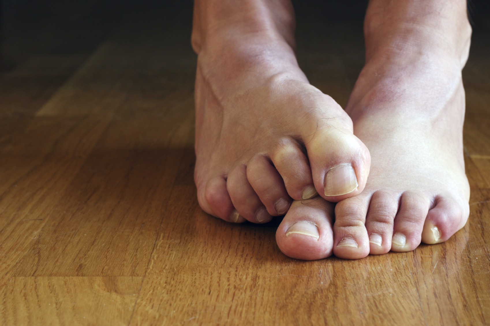 Image result for Use non-surgical methods for Morton's Neuroma